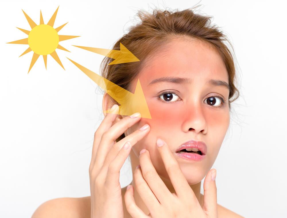 紫外線がニキビに及ぼす悪影響