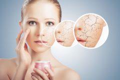 乾燥肌はニキビができやすい?乾燥ニキビの原因やおすすめの保湿化粧品を紹介