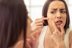 クレーターニキビ跡の治療法やケア方法を紹介!凸凹肌を治すことはできる?