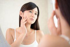 しこりのようなニキビ跡が治らない!原因から皮膚科での治療法まで徹底解説