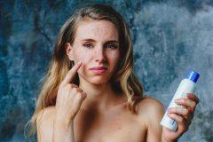 紫ニキビはニキビ跡になりやすい!?紫ニキビの治療法や予防法を解説