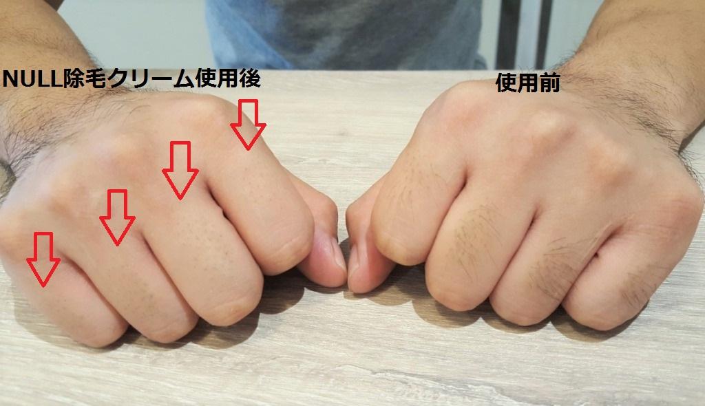 除毛した手としなかった手の比較