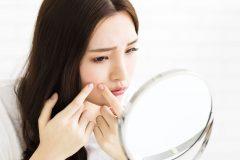 頬にできるニキビは乾燥が原因!?繰り返しできやすい頬ニキビのケア方法