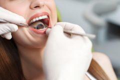 歯周病の原因に!「歯石」ってなんでできるの?定期的に取るべき??