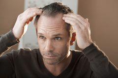 頭皮も老化する!薄毛・抜け毛で悩む前に頭皮のエイジングケア