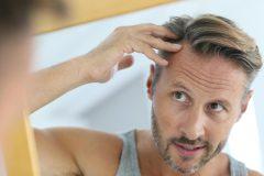 ヘアケアサプリってホントに薄毛予防になる?ハゲないための飲み方とは