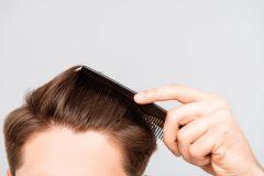 頭皮のにおいは薄毛・抜け毛の原因?!頭皮ケアをしてハゲを回避せよ!