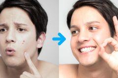 男性のニキビと吹き出物って何が違う?保湿や化粧品で対策できるの?