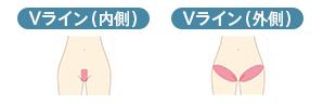 Vライン(内側) Vライン(外側)