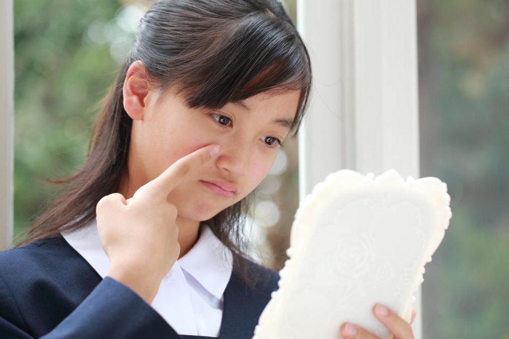 子供のニキビを治したい!小学生・中学生・高校生の思春期ニキビの対処法
