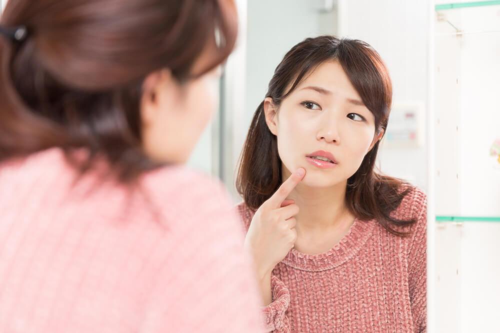 女性のあごニキビは生理前や妊娠中にできやすい?原因と対策を紹介