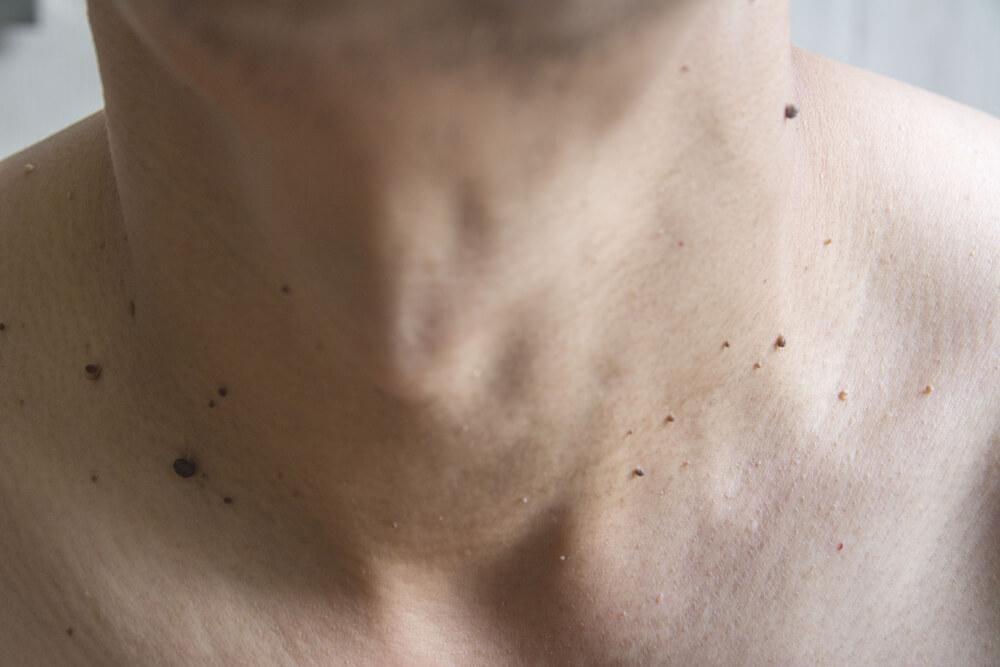 首のイボの画像