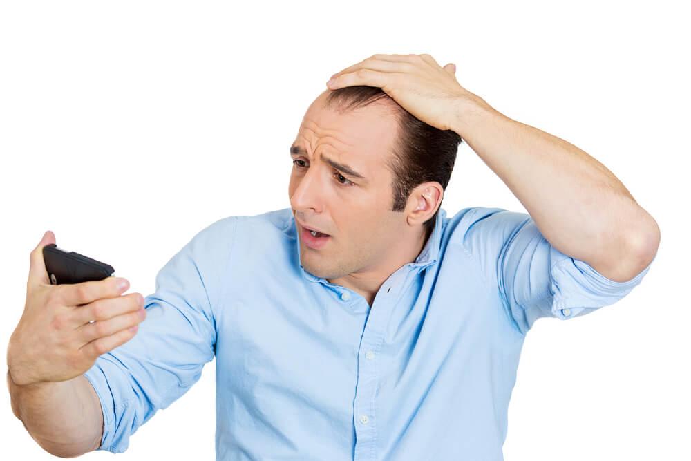 なんで男性は薄毛になりやすいの?