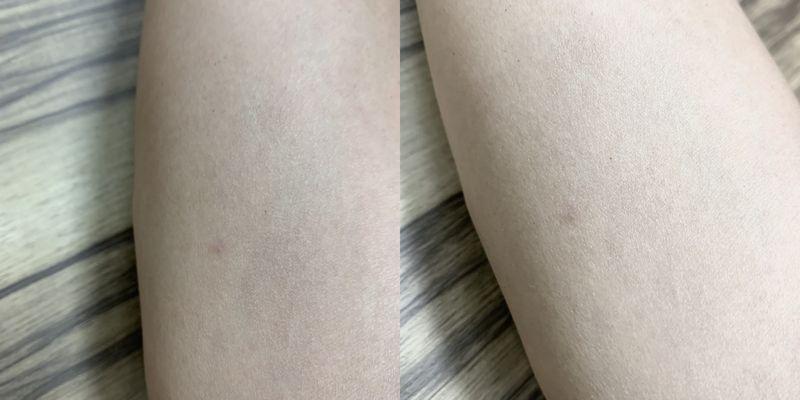 イビサクリームの効果をビフォーアフターの画像で比較