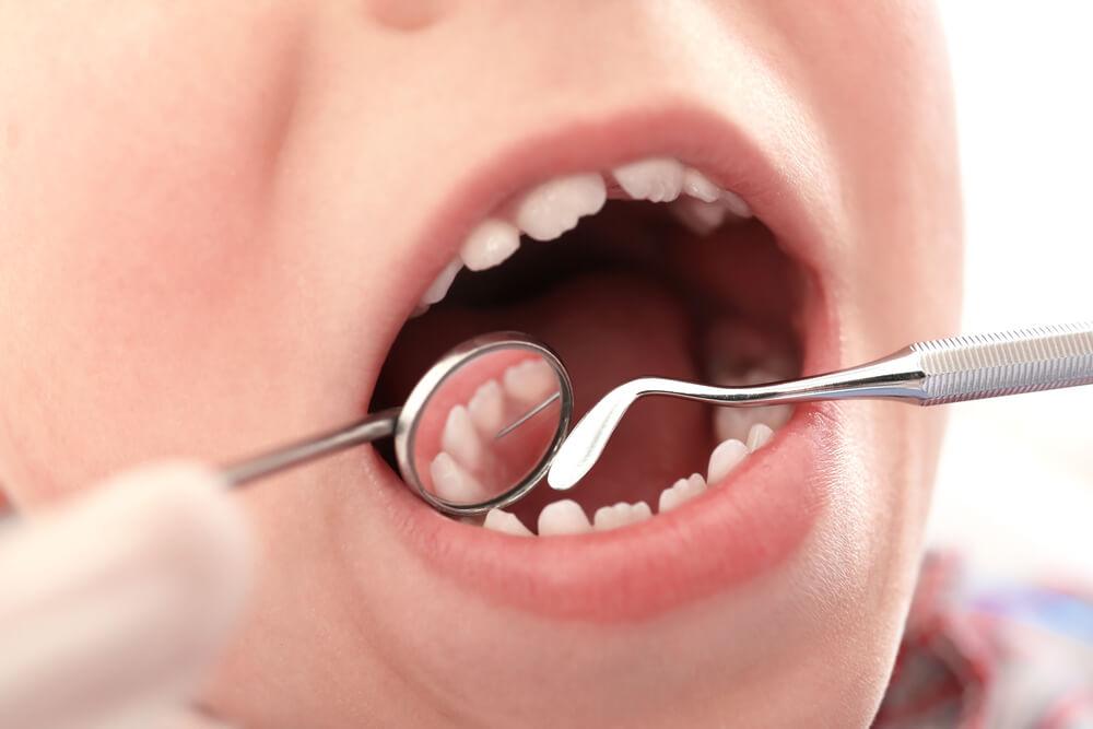 ブリアンはなぜ虫歯予防にいいのか?