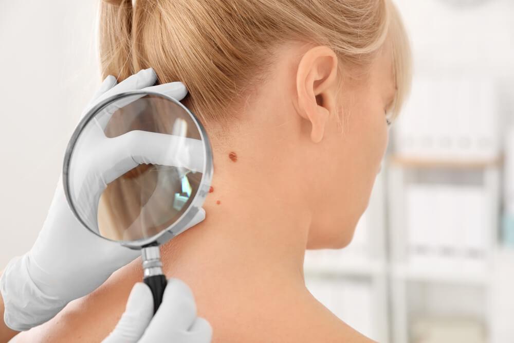 脂漏性角化症と間違えやすい症状も紹介