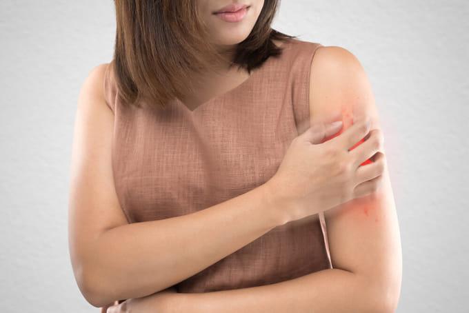 二の腕や背中の気になるブツブツ「毛孔性苔癬」とは?